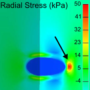 Graphic of the radial stress (kPa) of the human thoracic aorta